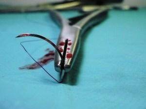операционная, кровопотеря