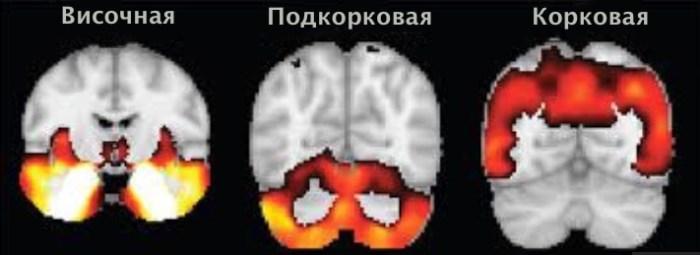 мозговая атрофия