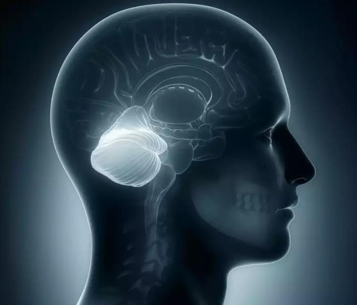 Поражения мозжечка. Проявления патологии мозжечка