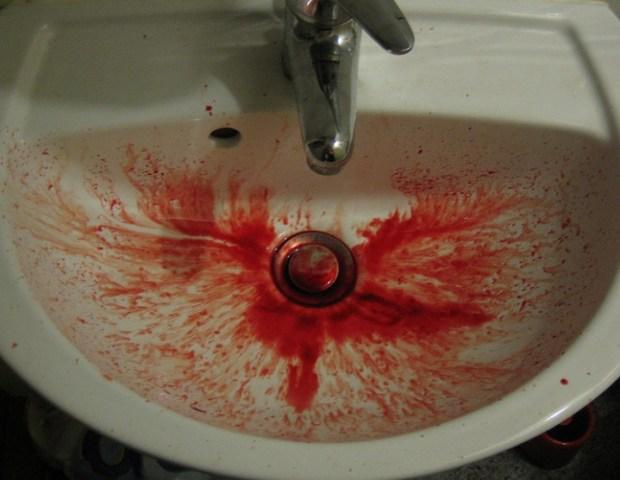 кровь, рвота