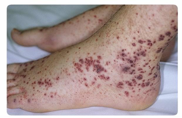 Идиопатическая тромбоцитопеническая пурпура, Тромбоцитопения