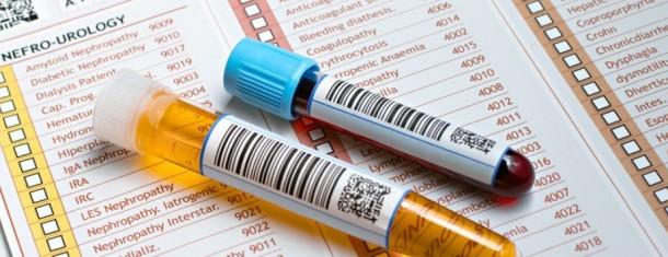 Инфекции мочевыводящих путей, лейкоциты, моча, мочеиспускание