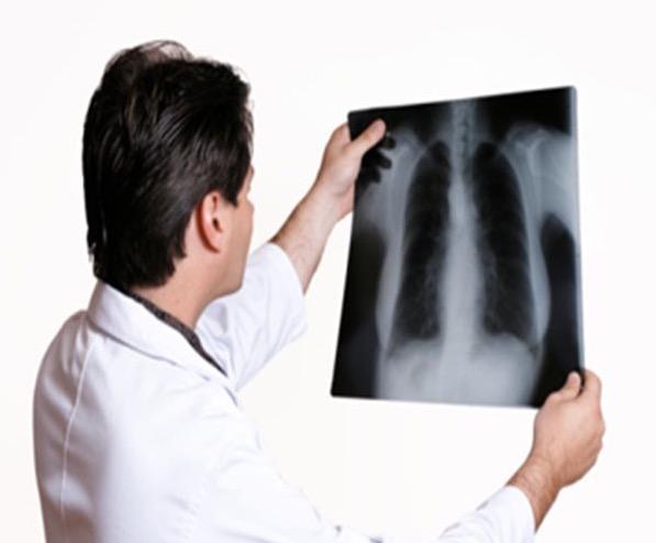 менопауза, функция легких, жизненная емкость легких