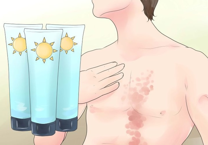 псориаз, витамин D