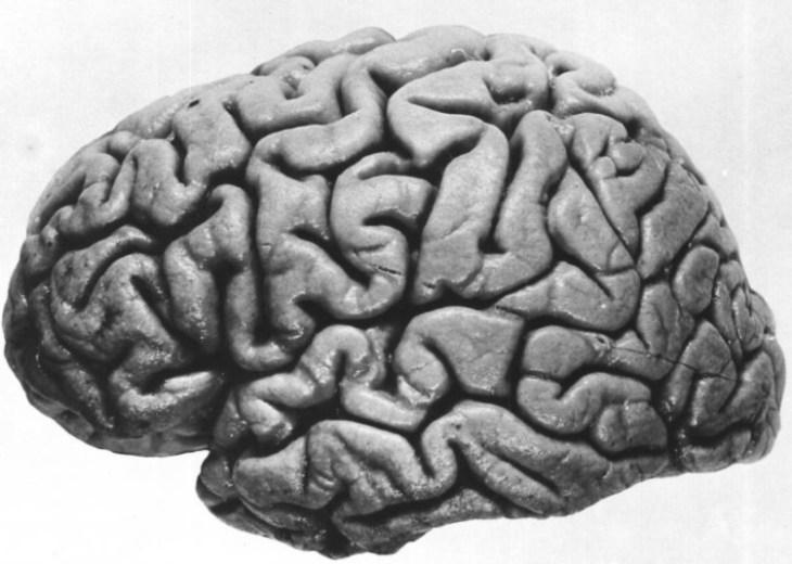 головной мозг, объем, серое вещество, пожилые люди, риск
