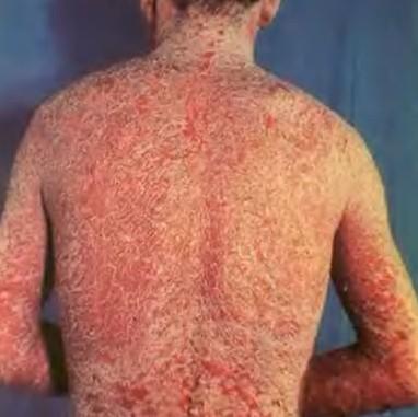 Эритродермический псориаз: диагностика, симптомы и лечение