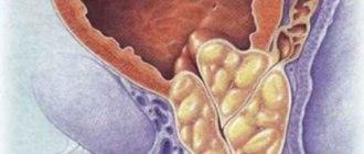 Доброкачественная гиперплазия предстательной железы, ДГПЖ