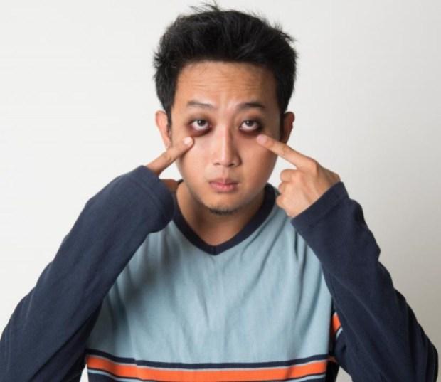 витамины, синдром сухого глаза