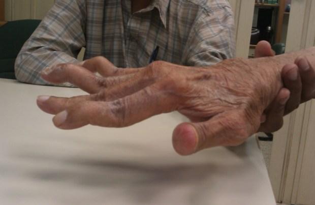 серонегативный ревматоидный артрит