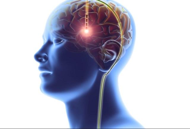 анорексия, стимуляция головного мозга