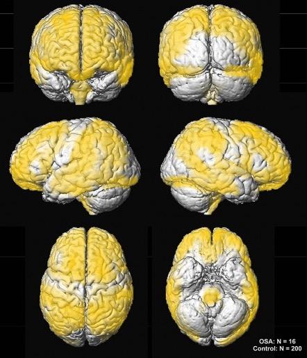 апноэ сна, развитие головного мозга, дети