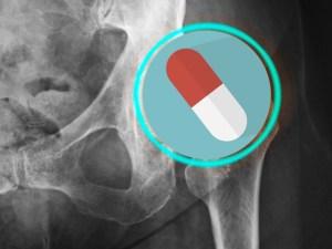 снотворные препараты, перелом шейки бедра, пожилые люди, Бензодиазепины, Небензодиазепины