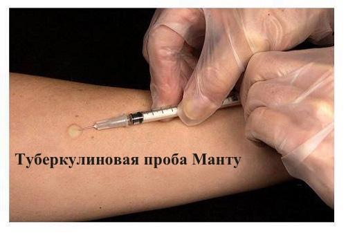 туберкулиновая проба Манту, туберкулез