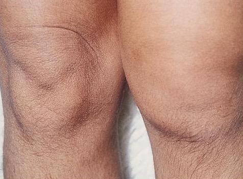 реактивный артрит, синдром Рейтера