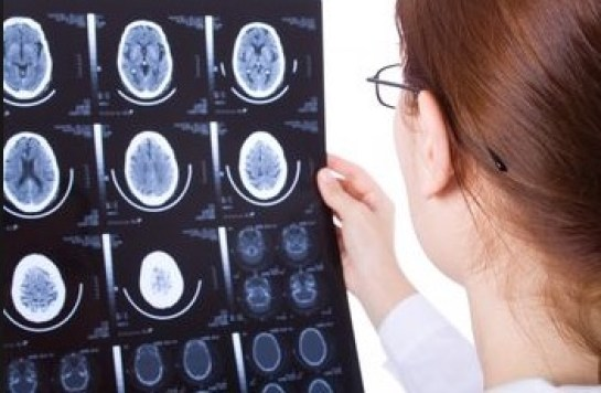 функциональные неврологические расстройства