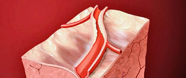 кальций, инфаркт миокарда