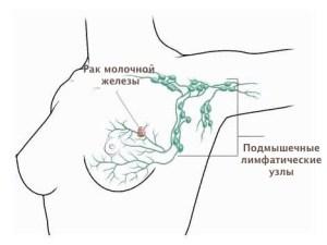 рак молочной железы, подмышечные лимфатические узлы