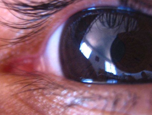 белок, слепота, глаукома, нейрозерпин