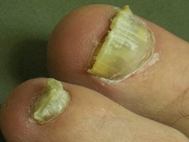 Утолщение ногтей