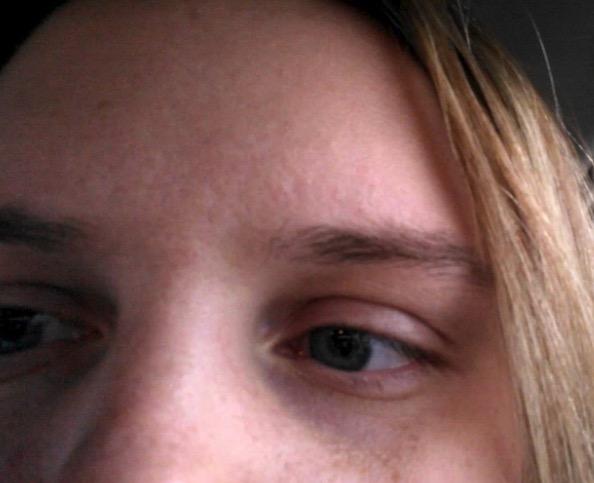 дергается бровь, почему дергается бровь, дергается бровь над глазом, двигаются брови причины, подергивание бровей