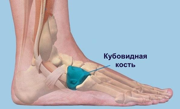 Синдром кубовидной кости: симптомы и лечение