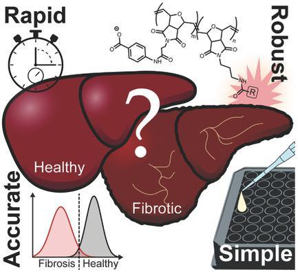 анализ крови, фиброз печени