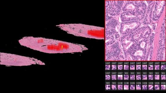 Искусственный интеллект помогает в обнаружении скрытых признаков рецидива рака