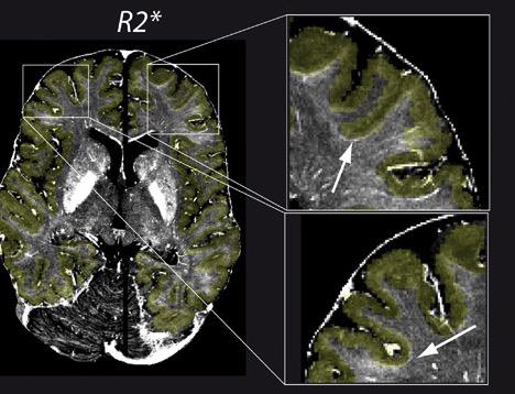 Что лежит между серым и белым веществом головного мозга?