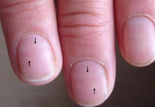 Как нехватка цинка влияет на ногти человека?