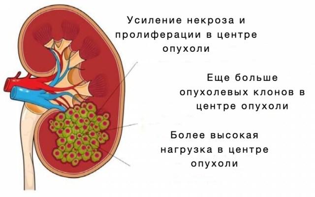 Клетки в центре опухоли являются наиболее агрессивными - исследование