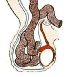 Пахово-мошоночная грыжа у мужчин, особенности диагностики и терапии. Пахово-мошоночная грыжа Мошоночная грыжа у мужчин лечение без операции