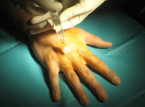 technika érzéstelenítés végrehajtására a szemészetben