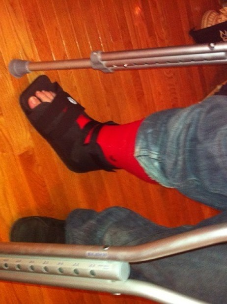 Justis Broken Ankle October 1 2012
