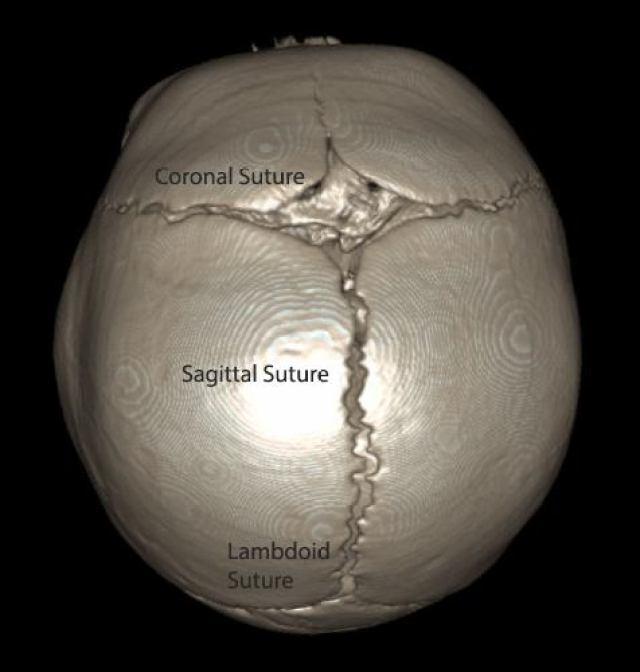 Braxton contrast normal skull CT scan