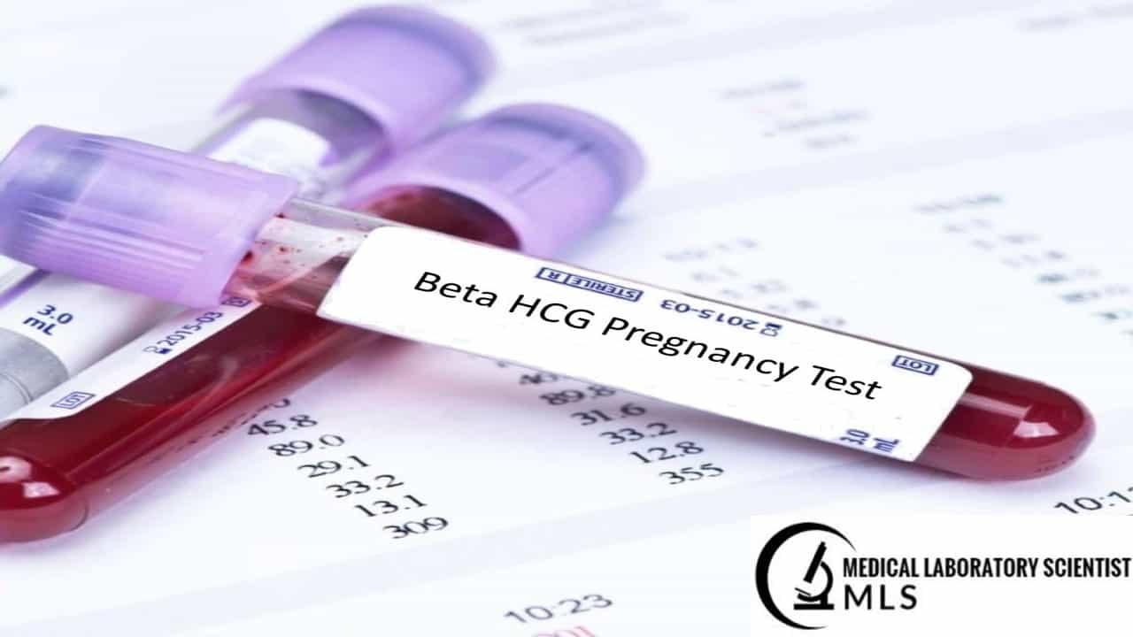 Beta hcg test