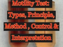 Motility Test: Types, Principle, Method, Control & Interpretation