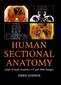 Human Sectional Anatomy The Medical Media Review