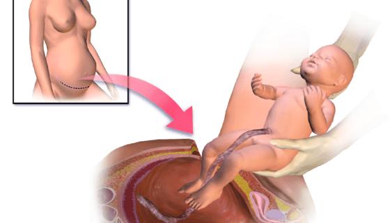 Cesarean-Delivery-560x420-560x321