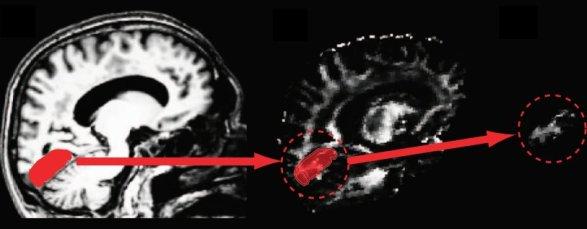 brain_scan_visual_cortex.png