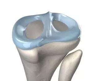 device for meniscus repair