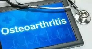 circadian rhythm and osteoarthritis