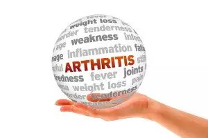 early detection of arthritis