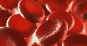 A new study, reported in the Journal of Alzheimer's Disease has found an association between anemia and mild cognitive impairment