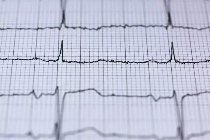 heart regeneration
