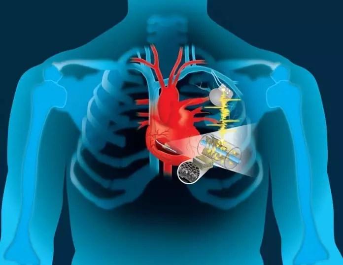 新的心脏起搏器能从患者的心跳提取动力