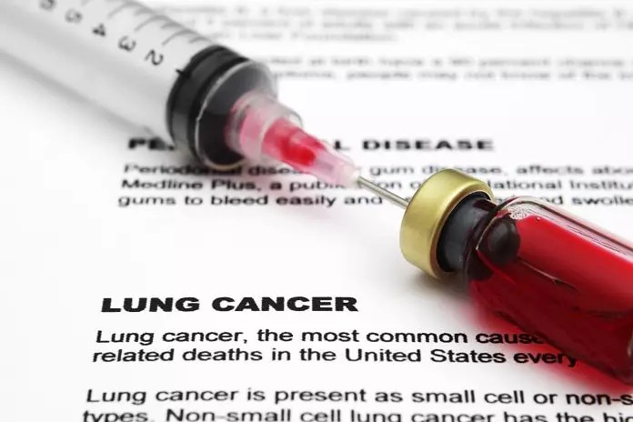 high-dose radiation for lung cancer