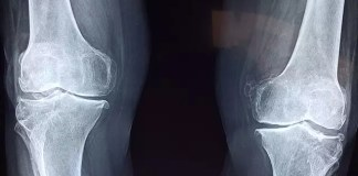 knee instability risk