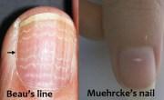 white lines nail indicating