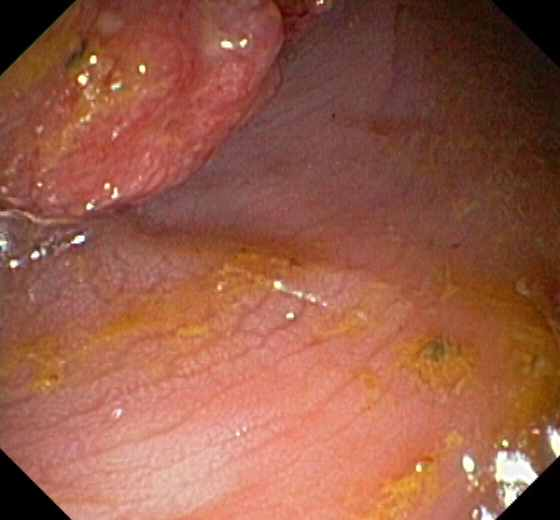 rectal cancer   Medical Pictures Info - Health Definitions ...
