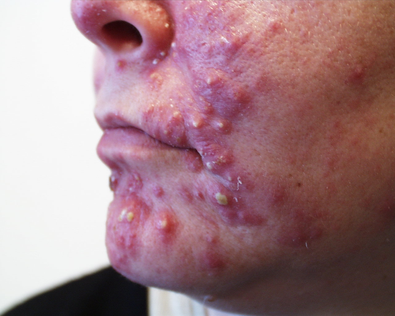 what causes acne diagram alpha one sterndrive parts pin hair follicle on pinterest